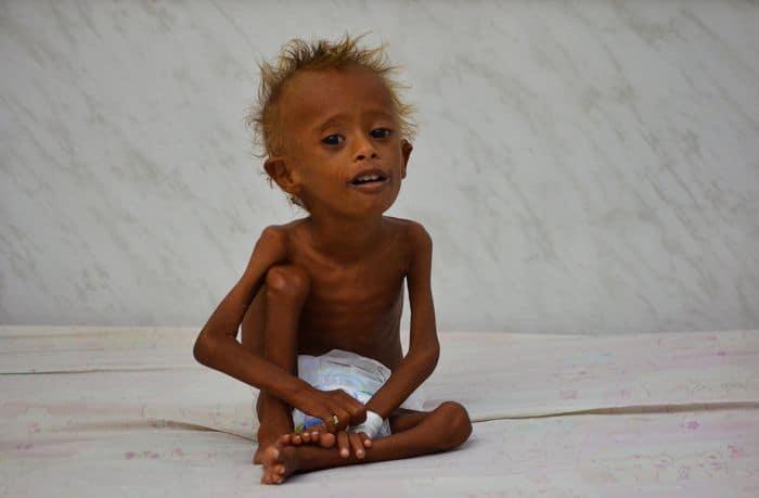 Inter-faith call for prayers as Yemen faces disaster